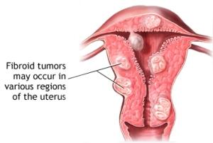 utereantumors1