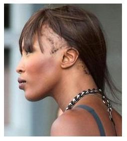 Hairloss in women