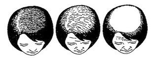 Zinc And HairLoss