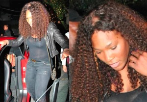 serena-williams-excessive-lace-front-wear-and-tear-or-excessive-hair-loss