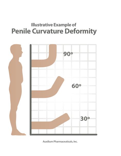 What Is Peyronie's Disease BKA CurvedPenis